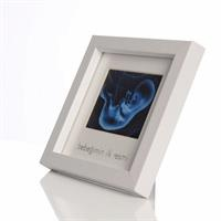 My Baby's First Ultrasound Photo Frame